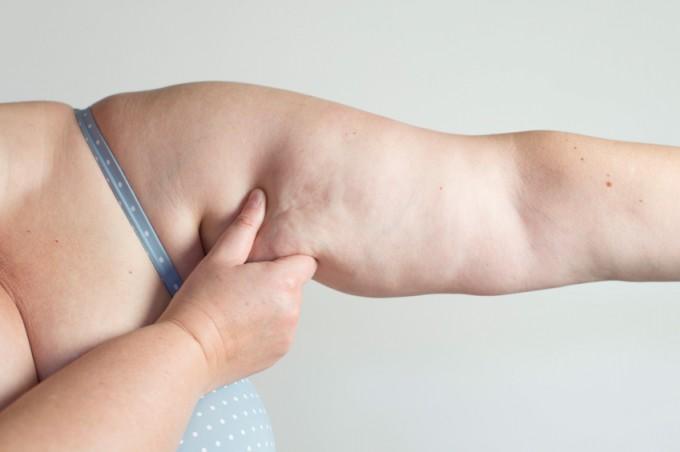Flacidez no braço