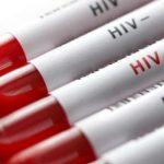 Cientistas Desenvolvem Arroz Modificado que Neutraliza Vírus do HIV
