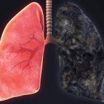 Enfisema Pulmonar - O Que é, Sintomas, Causas e Tratamento