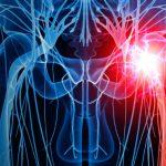 Síndrome do Piriforme - O Que é, Sintomas e Tratamento