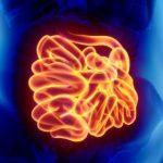 Inflamação no Intestino - Sintomas, Causas e Tratamento