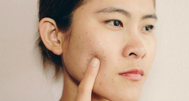 Manchas de acne