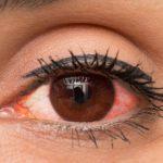 Olhos Vermelhos - O Que Pode Ser? O Que Fazer?
