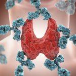 Tireoidite de Hashimoto - O Que é, Sintomas, Dieta e Tratamento
