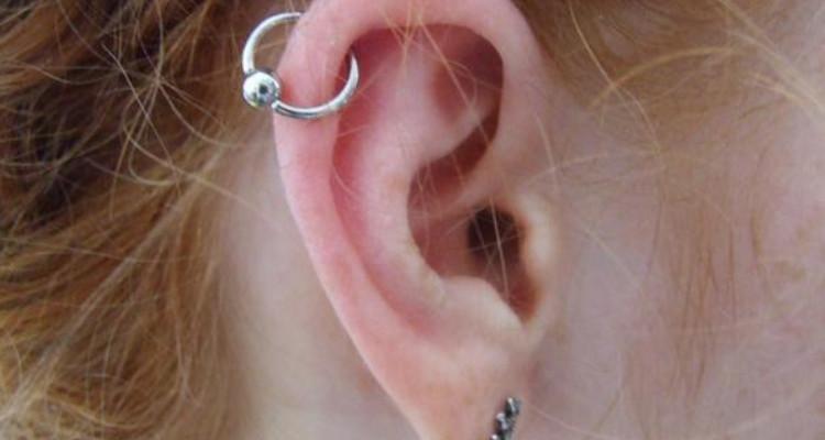 queloide na orelha