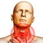 10 Sintomas de Hipertireoidismo